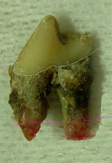 Hund Zahnstein 9 - kranker Zahn